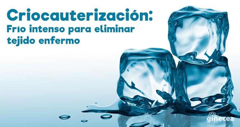 Criocauterización cervical: Frío intenso para eliminar tejido cervical