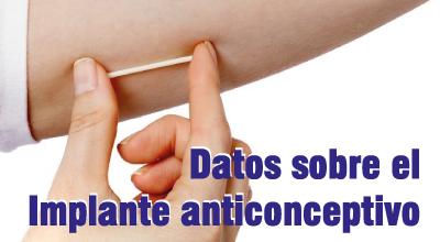 Datos sobre el implante anticonceptivo que seguramente no conocías